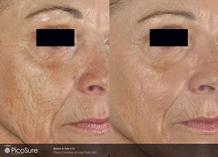 ba-picosure-wrinkle-luigipolla-post4tx440x317