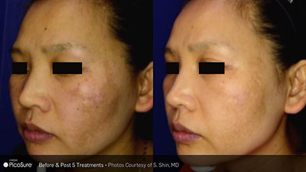 Dark Spot Removal | Broward Dermatology & Cosmetic Specialists